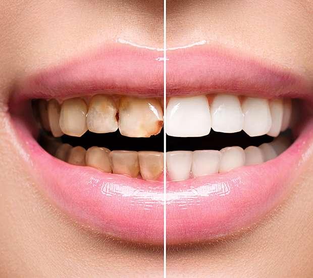 Round Rock Dental Implant Restoration