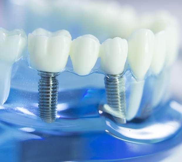 Round Rock Dental Implants