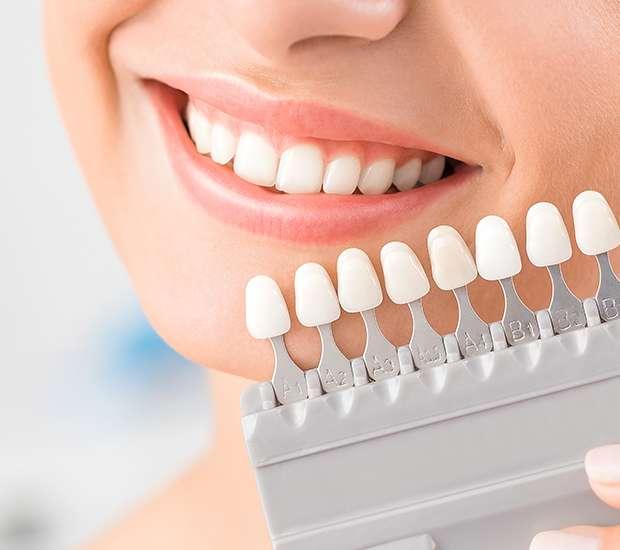 Round Rock Dental Veneers and Dental Laminates