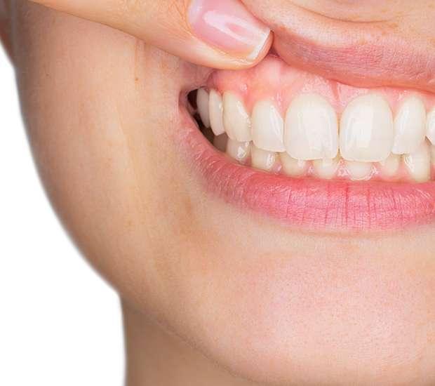 Round Rock Gum Disease